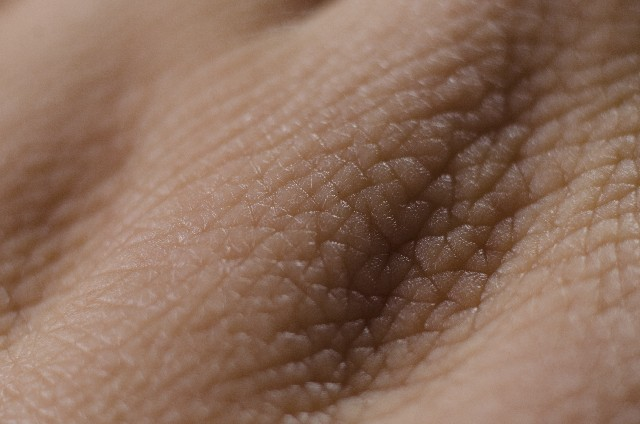 佐藤製薬:医療用にも注力へ、ニッチな皮膚科領域で(内資)